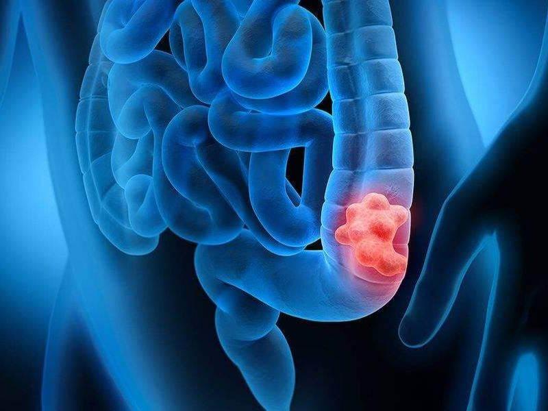 علائم سرطان روده بزرگ