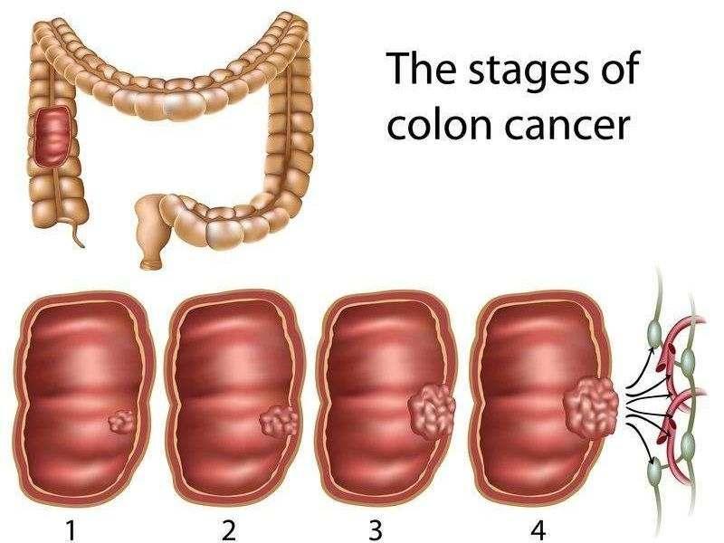 مراحل سرطان روده بزرگ