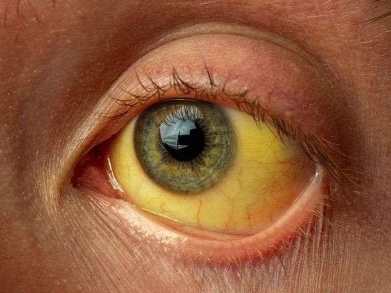 زردی چشم در کبد ناسالم