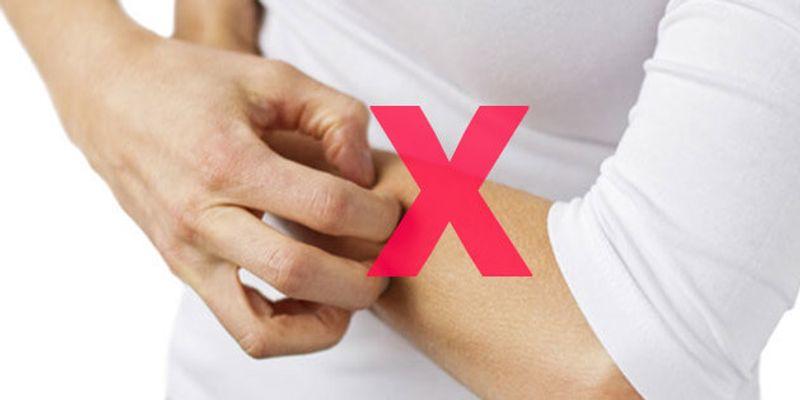 جلوگیری از خاراندن پوست