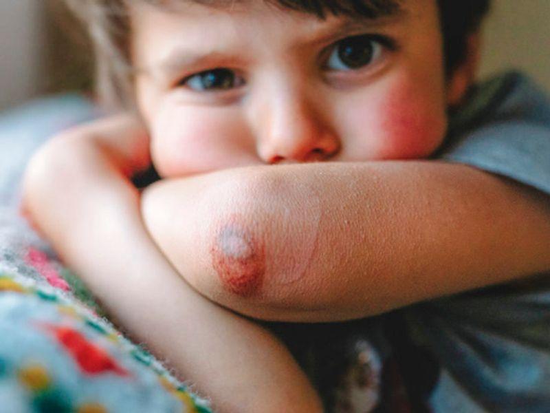کبود شدن از علائم بیماری کبد در کودکان