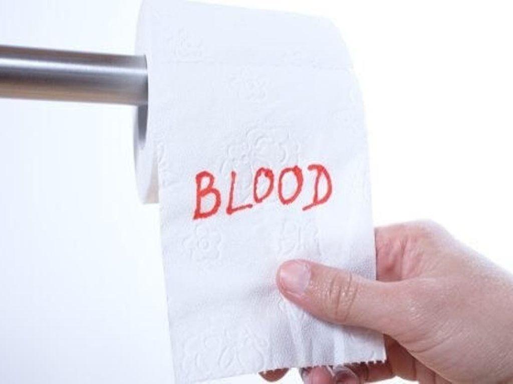 خون در مدفوع بدون درد